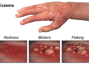 What you should know about eczema