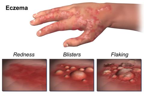 Eczema Skin Disorder