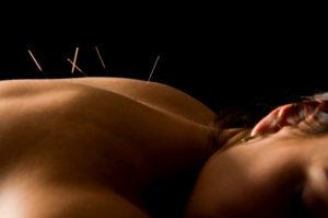 gesund-Acupuncture
