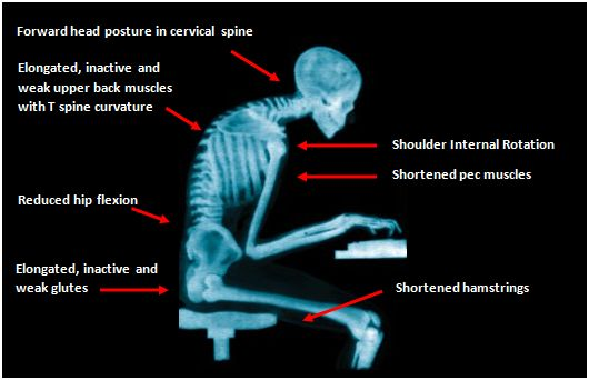 physiotherapy-gesund-x-ray-of-bad-posture